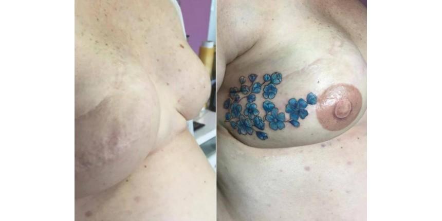 De graça, tatuadora cobre cicatrizes de pessoas que tiveram câncer
