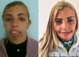 Mulher chamada de 'monstro' por ter rosto deformado faz cirurgia e fica...