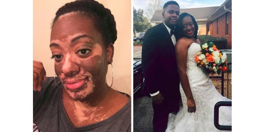 Após estresse, noiva desenvolve vitiligo meses antes do casamento