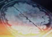 Você só usa 10% do cérebro? Pode aprender idiomas dormindo?...
