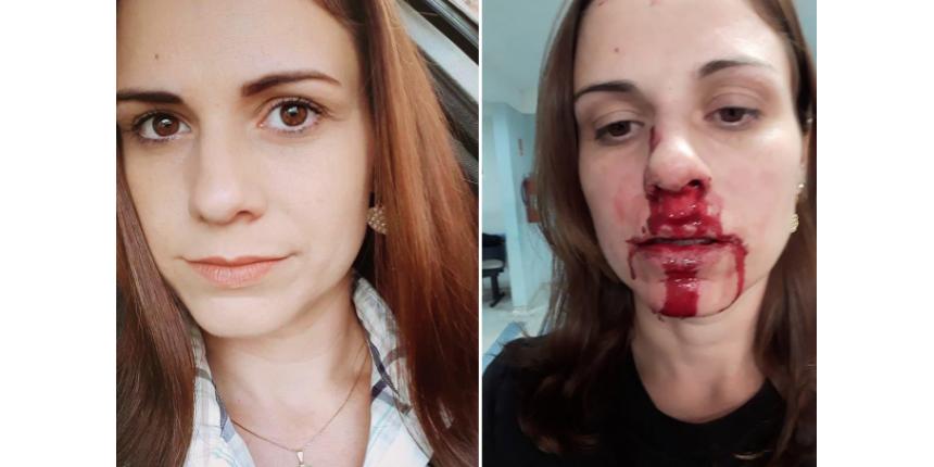 Com rosto ensanguentado, mulher acusa ex-marido de agressão em rede social