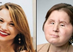 Transplante de rosto: a 'segunda chance' de uma jovem sobrevivente de um...