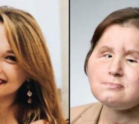 Transplante de rosto: a 'segunda chance' de uma jovem sobrevivente...