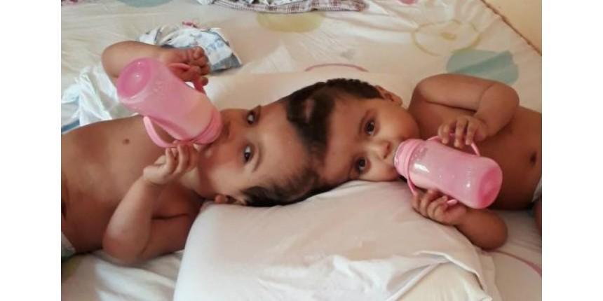 Siamesas unidas pela cabeça mostram evolução e já tentam dar primeiros passos, diz pediatra