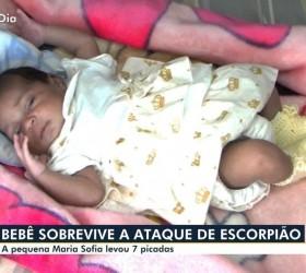 Pediatra que atendeu bebê picada por escorpião escondido em fralda...
