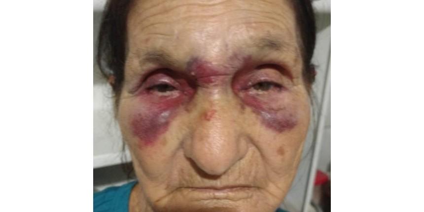 Família pede justiça após filho que agrediu mãe de 73 anos ser solto