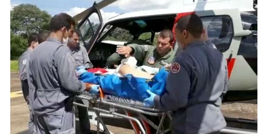 Homem que teve mão decepada por serra elétrica faz cirurgia de reimplante