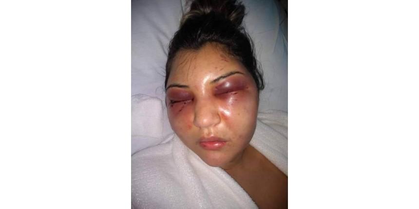 Filho do Presidente Câmara RJ acusado de agredir a mulher é preso