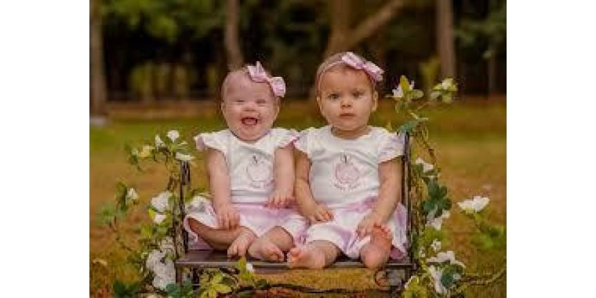 Em caso raro, mãe tem gêmeas e uma delas nasce com Síndrome de Down: 'Descobri apenas no dia do parto'