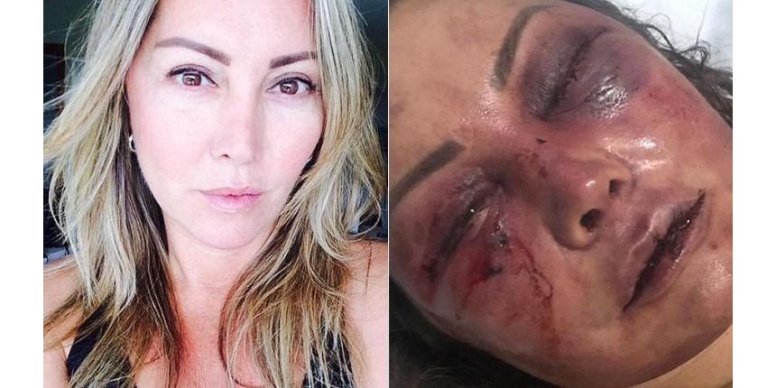 'Logo, logo eu estou numa boa', diz mulher espancada dentro de casa na Barra da Tijuca