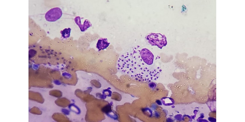 Cientistas brasileiros descobrem parasita responsável por 2 mortes e 150 casos de infecções graves