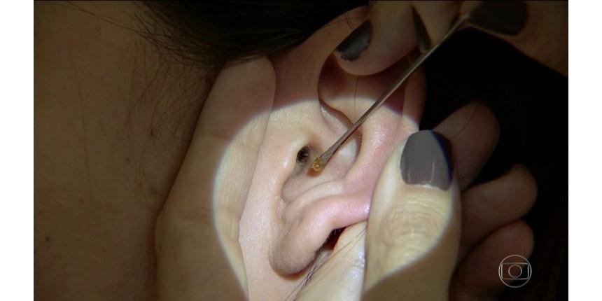 Pesquisadores da UFG descobrem exame com cera de ouvido que detecta câncer
