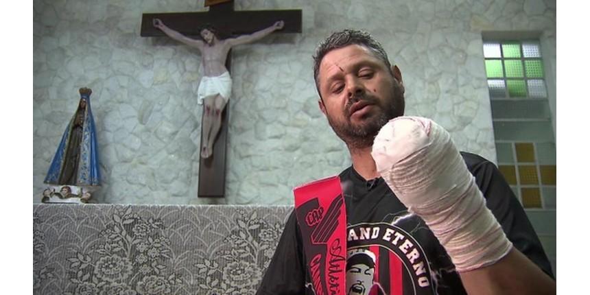 'Poderia ter explodido na minha cara, e eu poderia ter morrido', diz torcedor que perdeu a mão