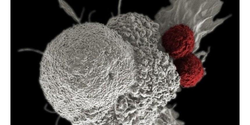Cientistas caminham para 'turbinar' células de defesa contra o câncer