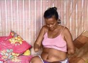 Mulher sem mãos e pernas tem pedido de benefício negado...