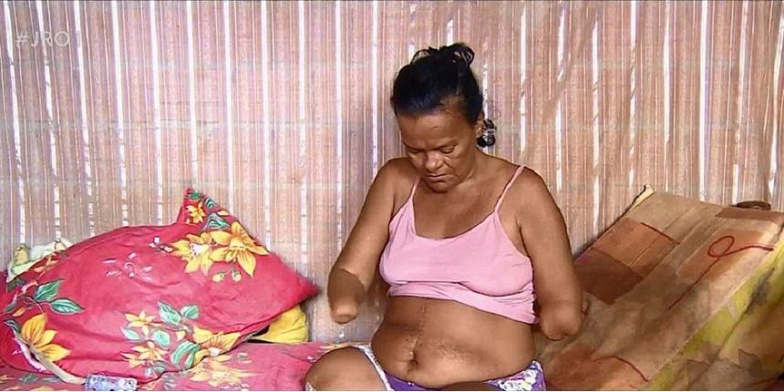 Mulher sem mãos e pernas tem pedido de benefício negado pelo INSS por não poder assinar papel