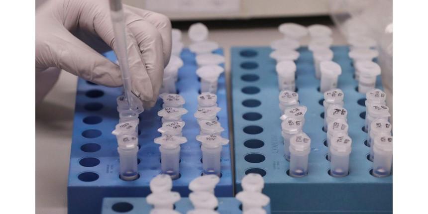 'Governo está agindo de forma correta', diz infectologista